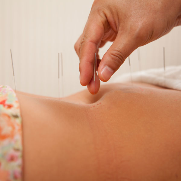 Acupuncture-Needles-1
